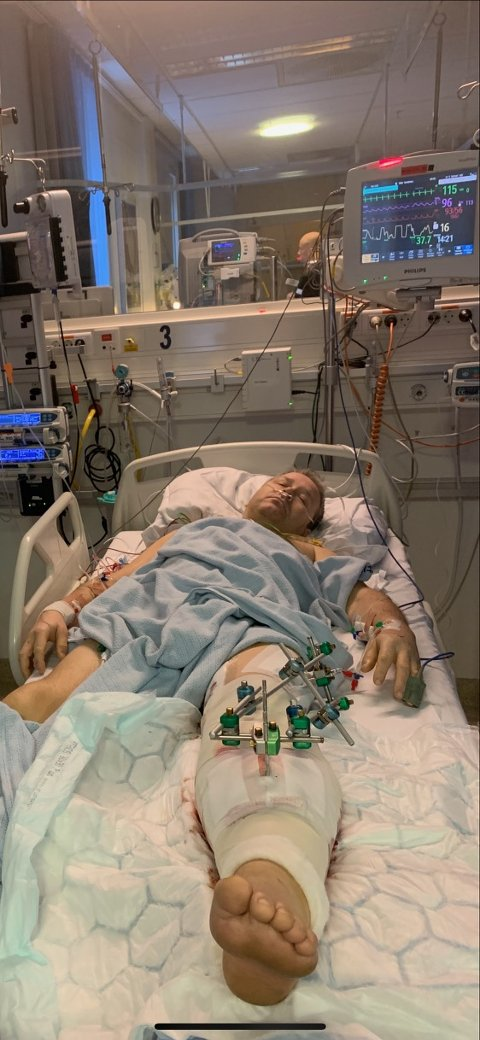 TØFFE DAGER: Odin Granheim (54) ble stygt kvestet i en ATV-ulykke 28. januar. Verdalingen har allerede gjennomgått fem operasjoner. Til uka må han gjennom sin sjette.