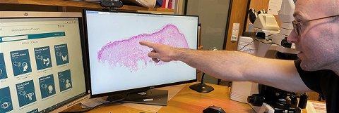 Overlege Tor Vikan Rise peker på det digitaliserte bildet av en vevsprøve. Teknologien forbedrer kreftdiagnostikken.