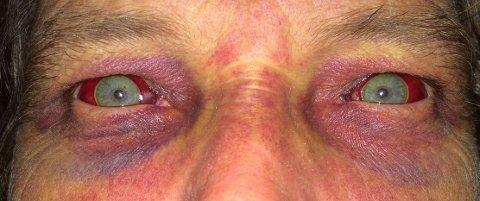 Slik så øynene og ansiktet til Jon Gjerde ut etter ulykken.