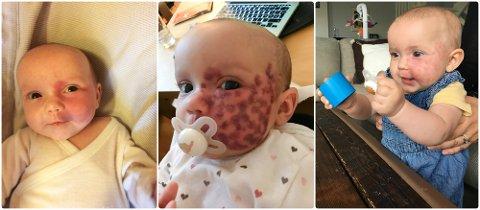 LASERBEHANDLING: Lille Florence Sofie Gylthe Kellgren fra Sandefjord får laserbehandling i USA for å lysne portvinsflekken så mye som mulig. På bildet til venstre er hun åtte uker gammel og ubehandlet. Bildet i midten er tatt rett etter andre behandling, da hun var cirka tre måneder gammel. Laseren lager blåmerker som forsvinner etter et par uker. På bildet til høyre, tatt en drøy uke etter åttende behandling, er hun nesten åtte måneder.