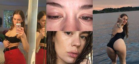 FORSKJELLIG: Anna Lotterud bruker Instagram til å vise fram en rekke forskjellige situasjoner fra sitt eget liv.