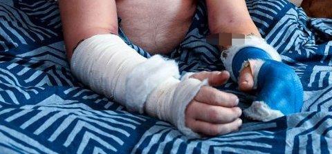 47-åringen fikk brukket begge armene i voldsepisodene. Skadene begrenser ham fortsatt i hverdagen, og har så mye smerter at han fortsatt må gå på sterke smertestillende.