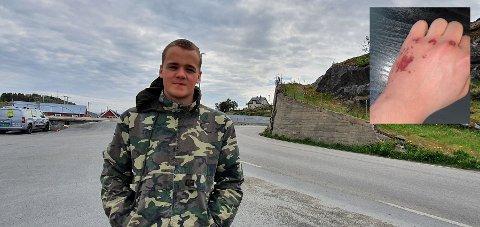 Adrian Fossli i Vaglesvingen i Stamsund, like ved der han måtte kjøre av veien på sykkel onsdag.