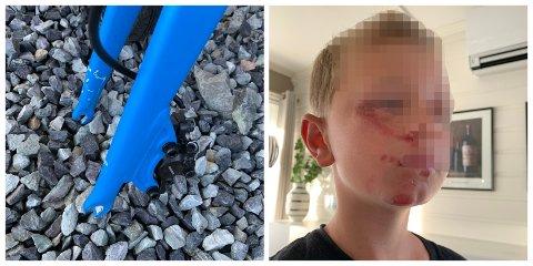 ADVARER: Moren til denne gutten fra Skoger advarer mot farlige «pøbelstreker» etter at han falt og slo seg stygt på sykkel.