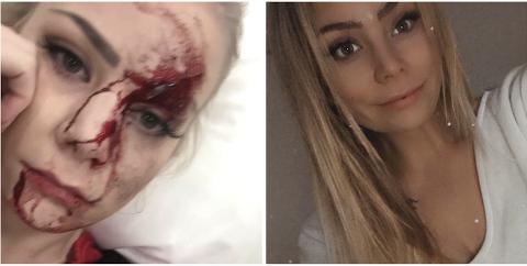 PÅKJØRT: Bildet til venstre viser hvordan Madelen Jørvum så ut etter å ha blitt påkjørt. Det er tatt etter at hun hadde vasket bort det verste. Bildet til høyre viser hvordan hun ser ut i dag, to år etter ulykken.