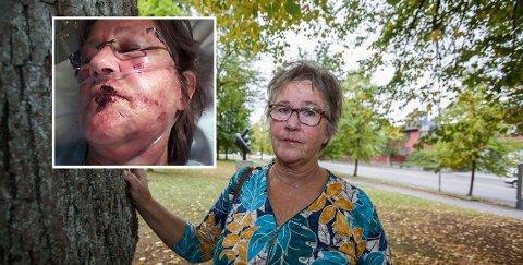 Ellen Eriksen sliter fortsatt. Fem år etter ulykka.