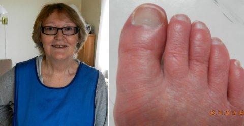 SJELDEN SYKDOM: May Licon har den sjeldne sykdommen erytromelalgi, noe under 200 i Norge har ifølge blant annet NHI.no.