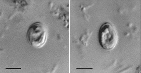 MANGE SMITTET: Mange i Trondheim er smittet av den encellede parasitten kryptosporidium. (Wikimedia Commons)