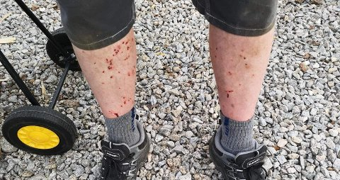 BITT TIL BLODS: Slik så beina til Øyvind Birkeland ut etter å ha vært ute i hagen og hogd ved. Han ble angrepet av Tuneflue.