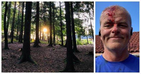 BLODIG: Jon Sanness Andersen gikk på trynet på joggetur i Teieskogen.