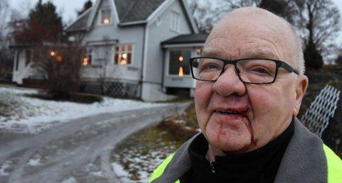 Slik så Bjarne Nystad ut etter det ublide møtet med elgen.