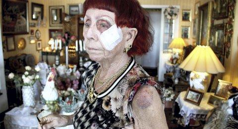 FORBANNET: Etter å ha sydd fire sting i ansiktet og knust brillene vil Nikoline Hammerø ha erstatning. BEGGE FOTO: LARS IVAR HORDNES
