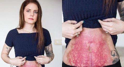 De sterke magesmertene topper seg. Som 14-åring blir Marion og 14-åringen vert akuttoperert på Gastroenterologisk seksjon ved Medisinsk avdeling på Haukeland. Foto: Morten Sæle