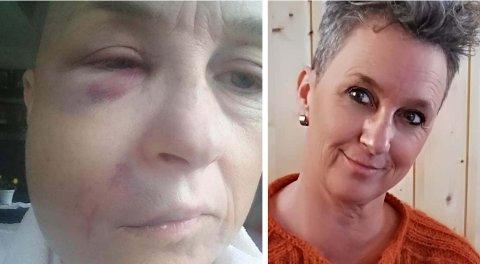 STORE SMERTER: – Slik så Øydis Felberg ut i etterkant av tannbehandlingen. Blodansamlingen forsvant, men smertene har hun levd med.