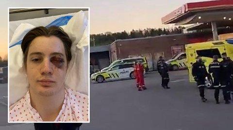 OPERERT I ØYET: Mathias Rafoss (19) måtte opereres på Ullevål sykehus etter masseslagsmålet på Cirkle K på Kopstad natt til fredag.