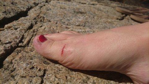 Bitt på strandtur: Elin Mossberg fikk et rift i foten da en hund bet i foten da hun gikk tur på Alværnstranda mandag. – Det blødde mye en god stund, men blødningene ga seg heldigvis etterhvert, sier Elin. FOTO: Privat