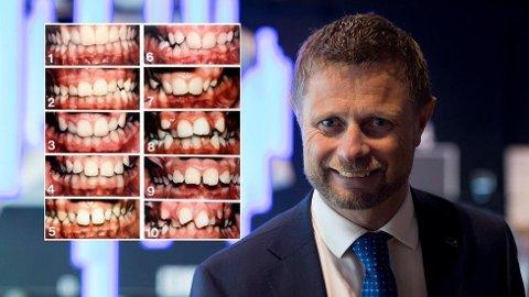 KUTT: Bent Høie (H) fjerner støtten til tannregulering for 10.000 barn. Foto: (Scanpix / Helsedirektoratet)