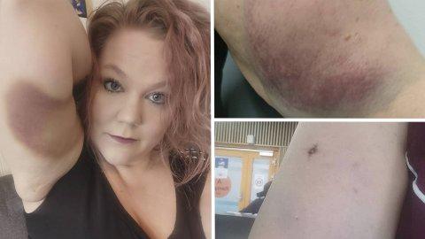 Jorunn Beate Olsen har fortsatt tydelige blåmerker på armen. Bildet til høyre er tatt mens hun satt på legevakten og ventet på behandling.