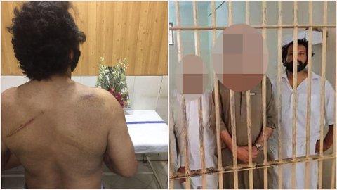 LØSLATT: Kadafi Zaman ble utsatt for brutal politivold da han ble pågrepet av politiet i Pakistan fredag 13. juli. Etter at han ble løslatt mandag var han til helsesjekk.