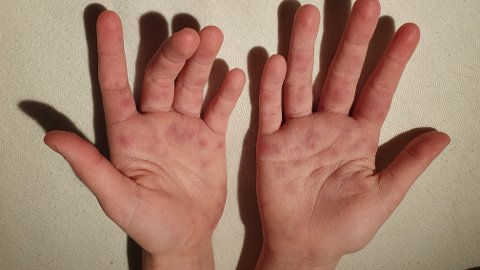 ENESTE SOM HAR REAGERT: Tre dager etter de var på Drammensbadet ser hendene slik ut. Pål Myhre-Svendsberget forteller at blant de fem som var på badet er det kun datteren Kirsten som har fått reaksjoner.