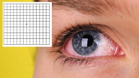 Mange sliter: Det finnes mange øye-symptomer man bør være oppmerksom på. Rødt øye kan være helt ufarlig, men det kan også være et alvorlig symptom. Rutefeltet kan avdekke en type sykdom. Testen ligger i saken.