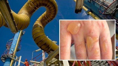 ULYKKE: Slik så hendene til en Gassco-arbeider ut etter å ha fått støt med nyspritede hender. Gassco understreker at ulykken ikke skjedde på arbeidsstedet, som her på prosessanlegget på Kårstø.  Foto: Øyvind Sætre/skjermdump (Gassco)