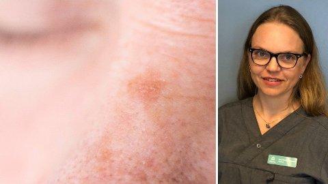 HUD: Pigmentflekker er ofte et problem for kvinner i 20-40 årsalderen, men rammer også eldre.