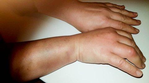 MERKER: iFinnmark har fått dette bildet av kvinnen, som viser blåmerker og en hoven finger.