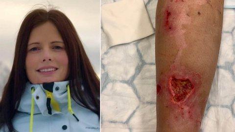 DÅRLIG: Bente Solvang fra Harstad hadde en dårlig opplevelse ved Barentsklinikken og skal ikke tilbake dit.
