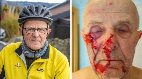 SKADET SEG: Sverre Nordbø vil gjerne finne ut hvem som hjalp han torsdagen han falt av sykkelen.