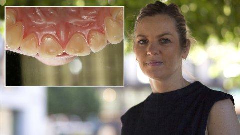 Lettbrus-alarm: President i Den norske tannlegeforening, Camilla Hansen Steinum, sier brus – lett eller vanlig – kan gi store syreskader på tennene. Innfelt er et eksempel på tenner med syreskader, der man kan se at syren har skapt groper i tennene. Fortennene er gule fordi det øverste hvite emaljelaget er slitt vekk.