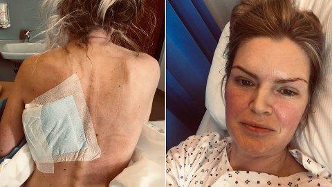 KUL: Silje Løkeng hadde nylig rundet 40 da hun oppdaget en kul i brystet.
