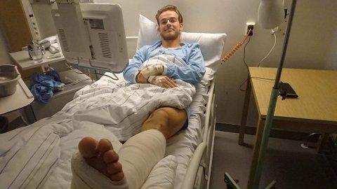 Andreas Solstrand Fossli ble operert på St. Olavs hospital mandag. Før det kunne han ikke spise på 20 timer. – Det var nesten verre enn at foten knakk, innrømmer 23-åringen.