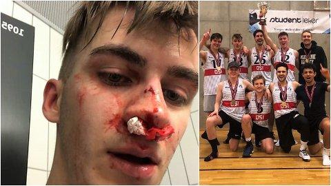 DYRKJØPT SEIER: Tromsøgutten Mats Berg Hammervoll (til venstre) skadet seg kraftig i ansiktet under dagens heftige finale i studentlekene.