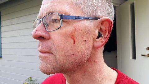 GLASSPLINTER I ANSIKTET: Bram Janssens slapp unna med noen små riper i ansiktet da han kjørte på en elg like sør for Landheimkrysset 12. oktober. En drøy måned smalt det igjen, omtrent samme sted.