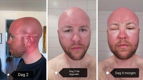 SOLBRENT: Slik så ansiktet til Lars Aunemo ut etter Oppdals-turen forrige torsdag.