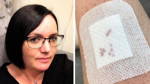 Kirsten Heitmanns føflekk på armen var i forstadiet til kreft. Hun kom seg heldigvis til legen i tide. (Privat/Montasje)