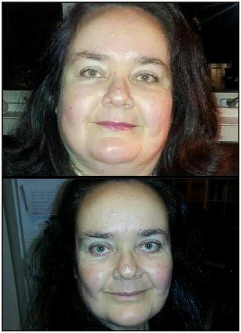 STOR FORSKJELL: Disse to bildene av Tina Bullen Jensen er tatt med ti måneders mellomrom. Det siste (nederst) i oktober 2014.