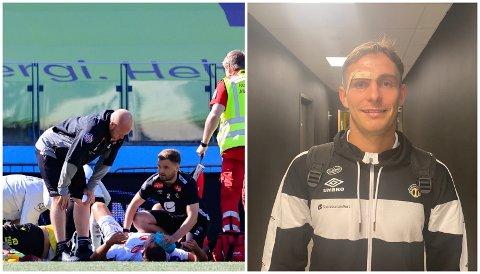 OPPEGÅANDE: Mathias Blårud (26) gjekk i bakken med ein smell i ansiktet nok ein gong, men denne gongen gjekk det bra med midtbanespelaren.