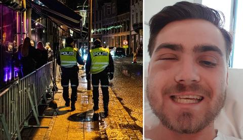 Jostein Skår (21) fikk store skader i ansiktet etter å ha blitt offer for blind vold ved et utested i Fredrikstad natt til 1. juli i fjor. Fortsatt er ikke gjerningsmannen stilt til ansvar.