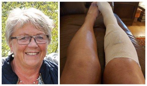 ALVORLIG SKADE: Irene Thoresen ble alvorlig skadet da gressklipperen hun satt på veltet. Hun måtte sy 70 sting i beinet.