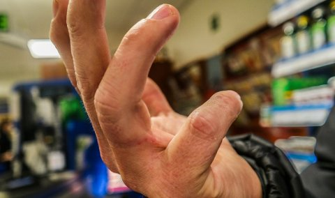 HENDER FØRST: Skabben blir ofte synlig på hendene først. Her ser man skabbgang mellom fingre hos en pasient med påvist skabb.