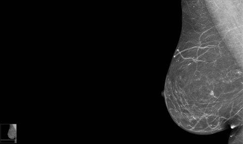 Liten kreftkul (hvit) i et bryst som er undersøkt av et mammografiapparat.