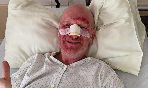 SMILER LIKEVEL: Til tross for hard medfart i hoppbakken, klarte likevel Arnstein Vatle å få fram et smil fra sykesenga i Innsbruck.