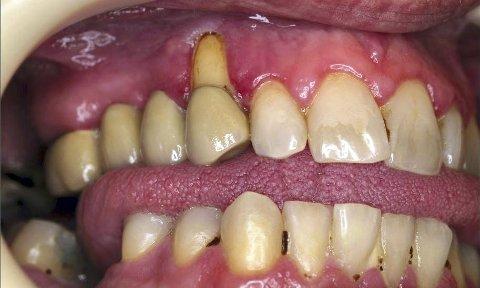 SKADER: Her har tannkjøttet trukket seg tilbake, beinet er blitt borte og store deler av tannroten er synlig. Foto: Privat