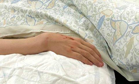 MÅTTE VENTE LENGE PÅ OPERASJON: Slik så armen ut til 14-åringen som skadet seg i Nordlysbadet, mens han lå inne på barneavdelingen i Hammerfest.. Han ble sendt med ambulanse til Hammerfest sykehus etter et kort opphold på legevakten i Alta.