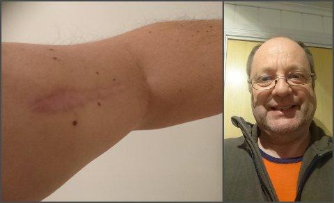 SMERTER: Over to år er gått siden Tom Pedersen (62) fikk blodforgiftning etter at han var innlagt på Gjøvik sykehus, og han har fremdeles smerter i armen. Til venstre et bilde av hvordan armen ser ut i dag.