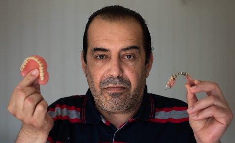 TRAUMATISK OPPLEVELSE: Naser Hadjizaher fikk trukket elleve tenner hos tannlegen og mener at han ikke forstod hva inngrepene innebar. Gebisset passer heller ikke, og faller ut hver gang 50-åringen åpner munnen.