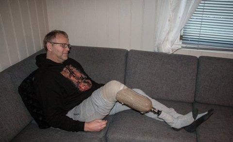 LITE VERDSATT: Norsk pasientskadeerstatning har verdsatt det tapte beinet til Finn Åge Olsen til 575 000 kroner.