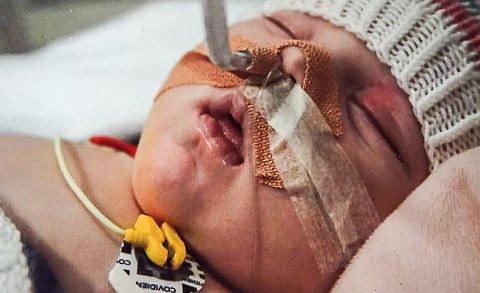LURTE DØDEN: Dominika overlevde. Hun fikk hjertestans. Da var hun to måender gammel.